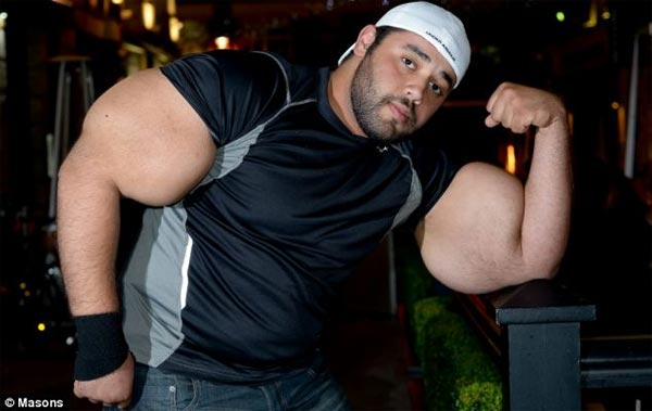 Real-Life Popeye with World's Largest Biceps