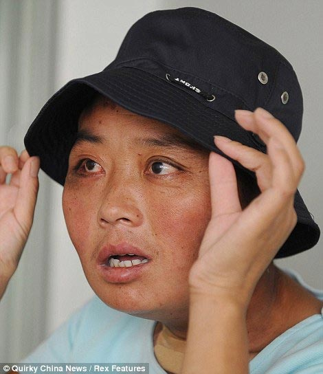 Chinese Woman with Disfigured Face