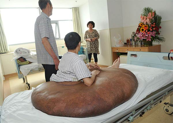 World's Largest Tumor Removed From Man's Back in China