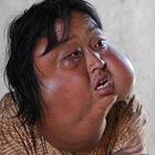 Chinese Woman with Monster Looking Face